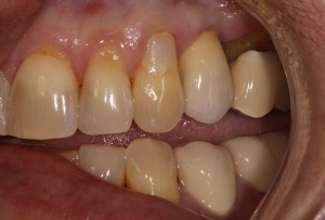 2AfterImplantCrown